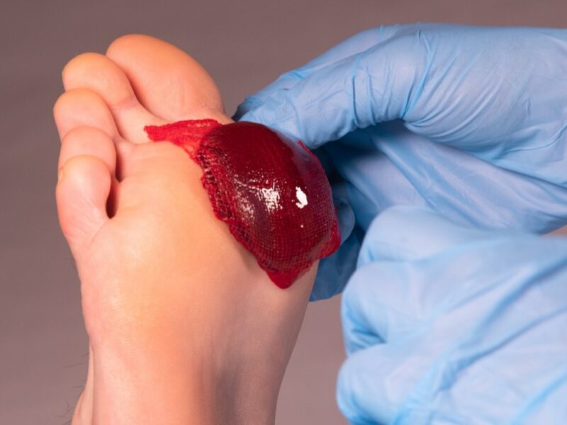 ActiGraft forms a blood clot outside the body, using the patient's own blood, and is applied to trigger healing in a chronic wound. Photo courtesy of RedDress.